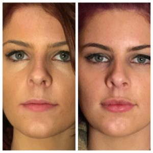 Juvéderm | Before and After | Keamy Cosmetic Centre